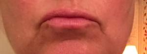 Mes lèvres